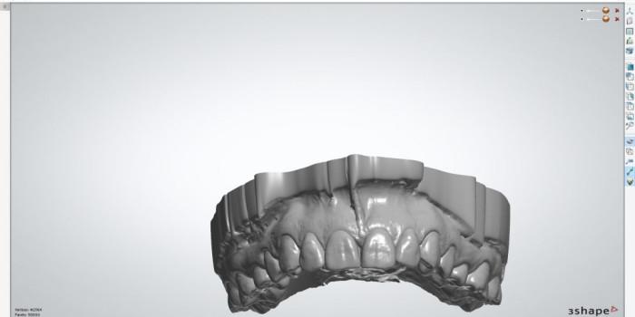 Diseño de sonrisas - Canodent, Laboratorio Clínico