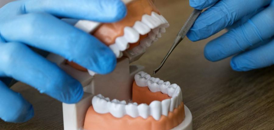 La importancia del protésico dental - Canodent, laboratorio Clínico
