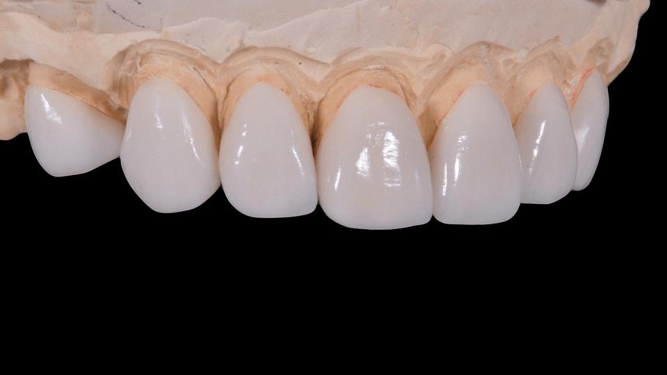 Laboratorio dental Sevilla