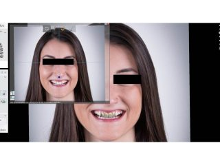 Diseño Dígital de Sonrisa